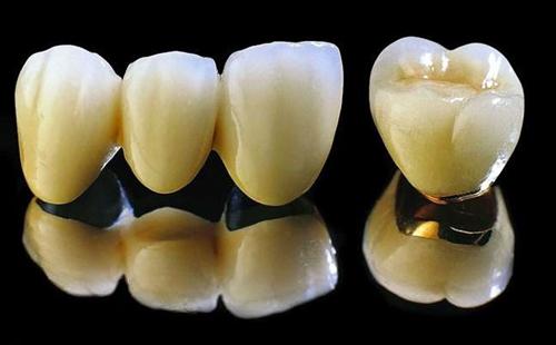 làm răng sứ như thế nào là đẹp và chuẩn xác -8
