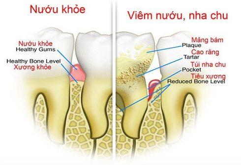Làm sao để có hàm răng đẹp 1