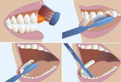 Làm sao để có hàm răng đẹp 2