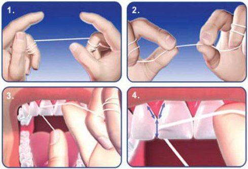 Làm sao để có hàm răng đẹp 3