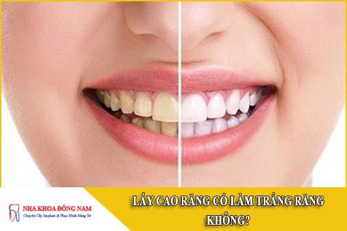 lấy cao răng có làm trắng răng không