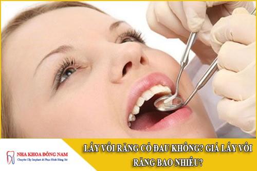 lấy vôi răng có đau không