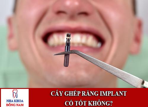 Lo lắng cấy ghép răng Implant có tốt không1