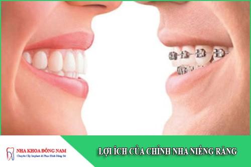 lợi ích của chỉnh nha niềng răng
