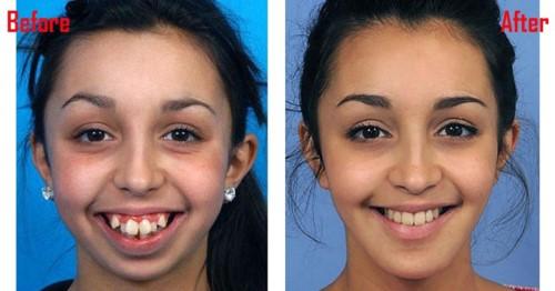 niềng răng cải thiện thẩm mỹ