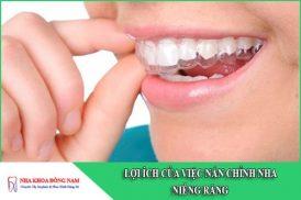 lợi ích của việc nắn chỉnh nha niềng răng