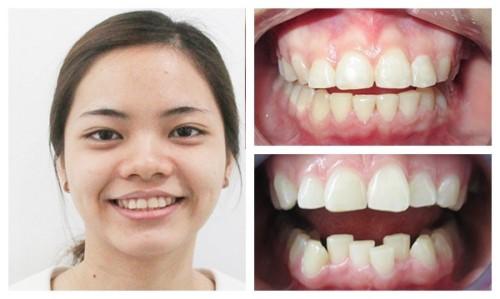 lợi ích của việc nắn chỉnh nha niềng răng 1