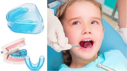 lợi ích của việc nắn chỉnh nha niềng răng 4