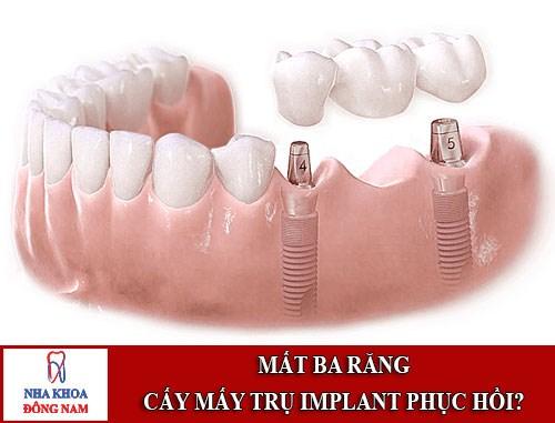 Mất 3 răng nên cấy mấy trụ Implant