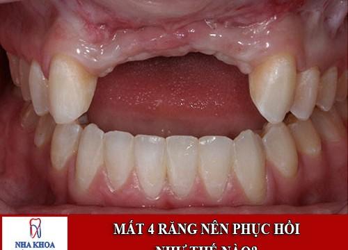 Mất 4 răng liên tiếp nhau thì phục hồi lại như thế nào?