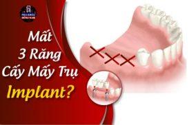 Mất Ba Răng Cấy Mấy Trụ Implant?