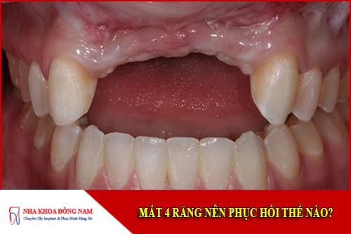 mất 4 răng liên tục thì phục hồi lại bằng cách nào