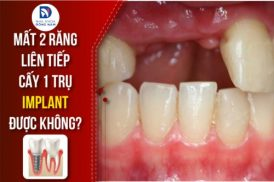 Mất Hai Răng Thì Nên Cấy Mấy Trụ Implant Để Phục Hồi?