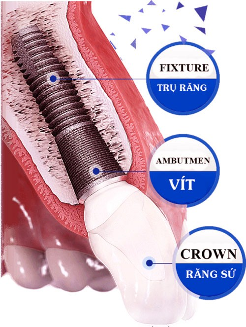 miễn phí răng sư khi cấy ghép implant 1