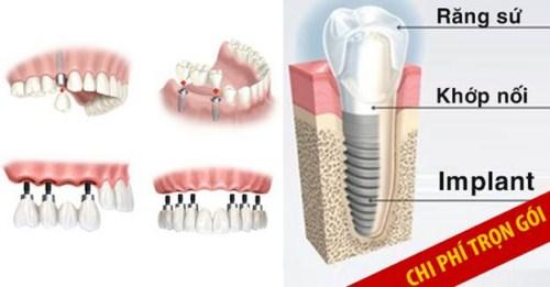miễn phí răng sư khi cấy ghép implant 5