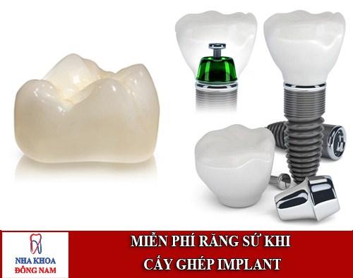 miễn phí răng sư khi cấy ghép implant