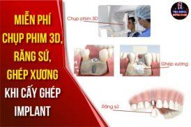 Miễn phí chụp CT, Răng Sứ, Ghép Xương khi cấy ghép Implant