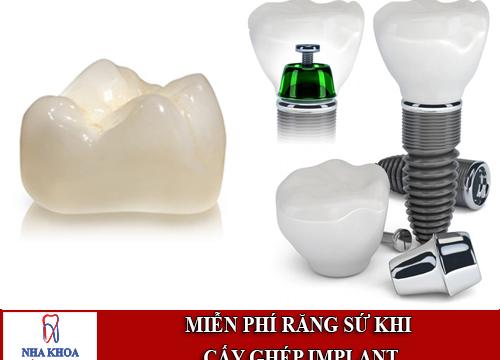 miễn phí răng sứ khi cấy ghép implant tại Nha khoa Đông Nam 5