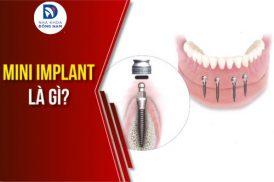 Mini Implant Là Gì