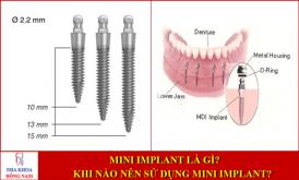 Mini Implant là gì? Khi nào nên sử dụng mini implant