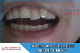 một chiếc răng cửa bị lệch thì điều trị như thế nào