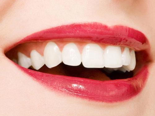 Nên chọn sử dụng răng sứ hay răng nhựa composite 3