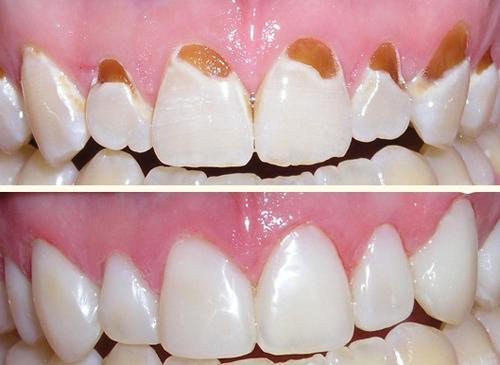 Nên chọn sử dụng răng sứ hay răng nhựa composite 2