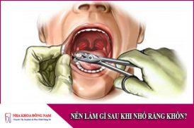 nên làm gì sau khi nhổ răng khôn