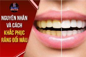 nguyên nhân và cách khắc phục răng bị đổi màu