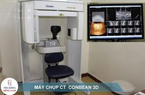 máy chụp phim 3D kiểm tra răng