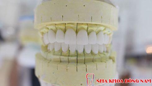 nha khoa làm răng sứ thẩm mỹ tốt nhất ở tp.hcm 9