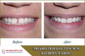 nha khoa trám răng có sử dụng bảo hiểm y tế không