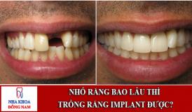 Mất răng bao lâu thì có thể trồng răng implant được 1
