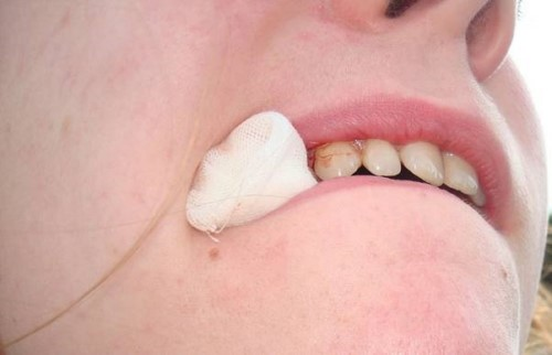 cắn gạt sau khi nhổ răng