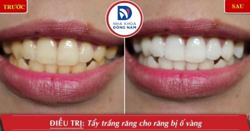 tẩy trắng răng zoom whitening