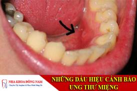 những dấu hiệu cảnh báo ung thư miệng -1