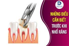 những điều cần biết trước khi nhổ răng