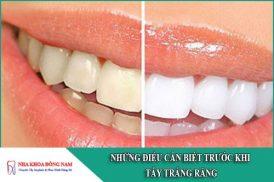 những điều cần biết trước khi tẩy trắng răng