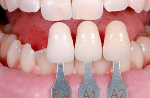 răng sứ không thể tấy trắng