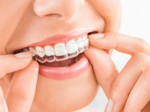 đeo máng ngậm tẩy trắng răng