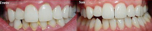 những điều cần biết trước khi tẩy trắng răng 7