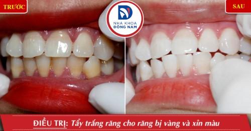 kết quả tấy trắng răng tại nha khoa đông nam