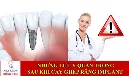 [Quan Trọng ] Những lưu ý sau khi cấy ghép răng Implant 1