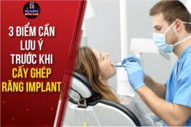 Những Lưu Ý Trước Khi Cấy Ghép Răng Implant