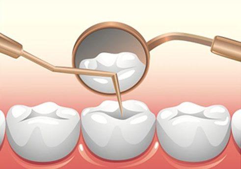 Những trường hợp nào không được nhổ răng 3