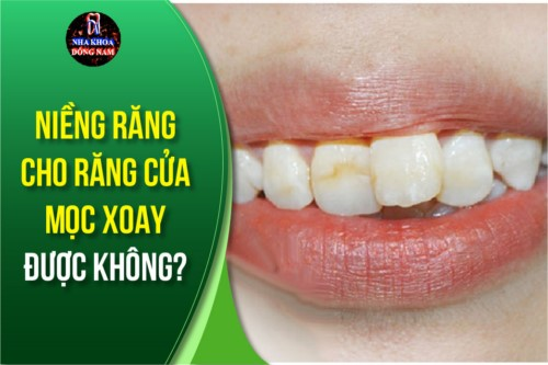 niềng răng cho răng cửa mọc xoay được không