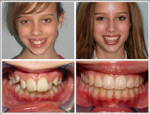 niềng răng chữa hô, móm, vẫu có được không 1
