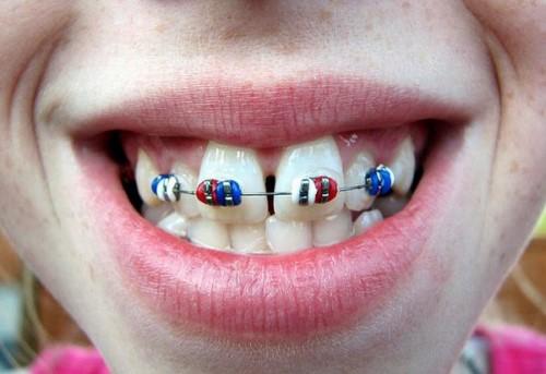 niềng răng chữa hô
