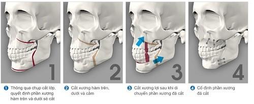 phẫu thuật chỉnh hàm hô
