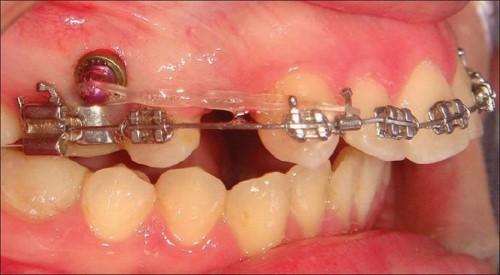 nhổ răng hỗ trợ quá trình niềng răng